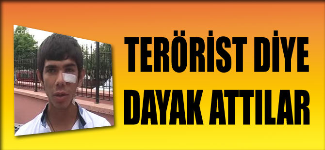 Terörist Deyip Dayak Attılar